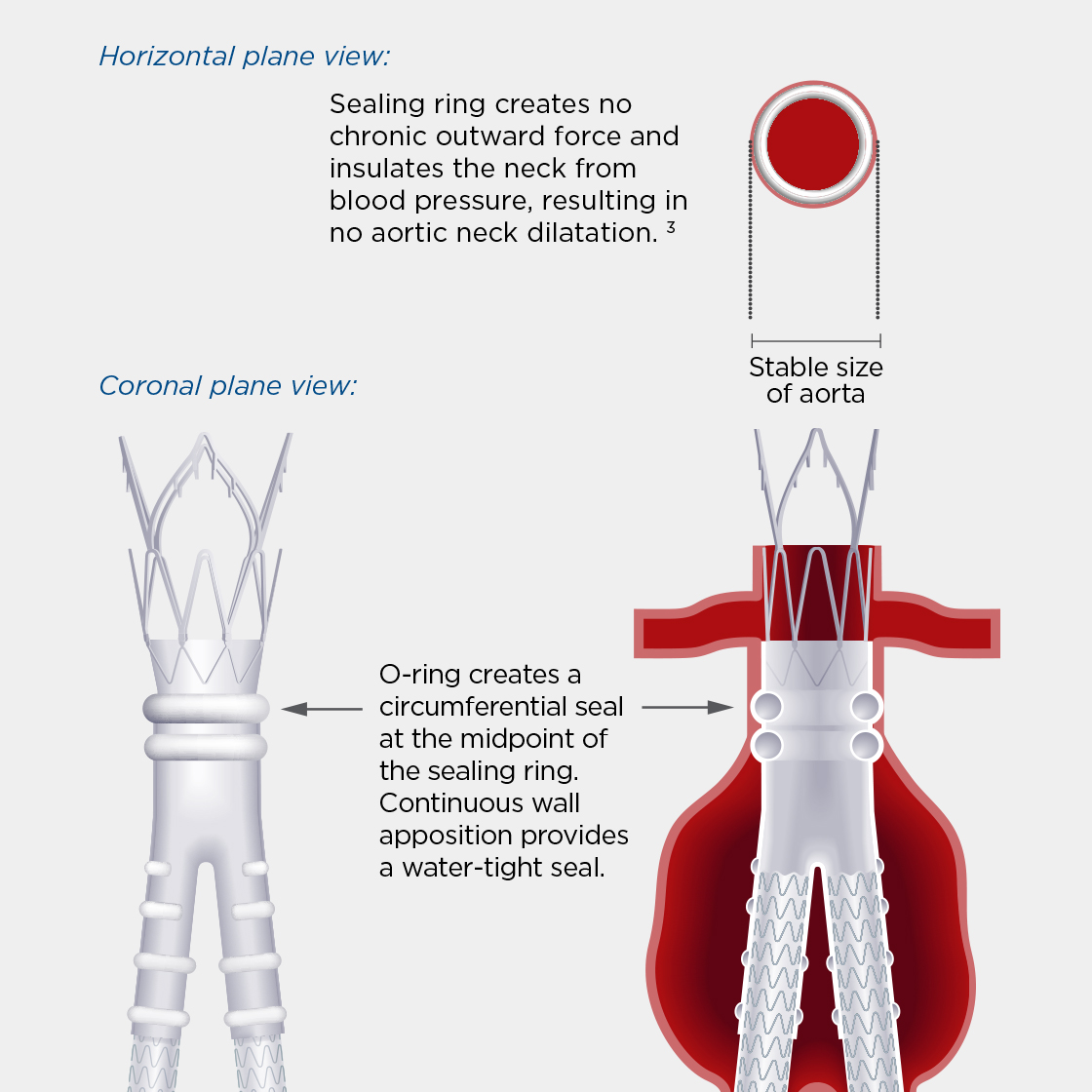 Ovation Abdominal Stent Graft